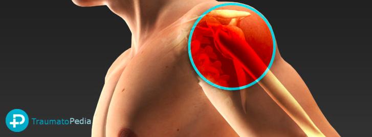 Rehabilitación cirugía manguito hombro