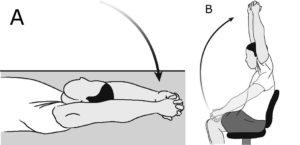 Rehabilitación elevación hombro