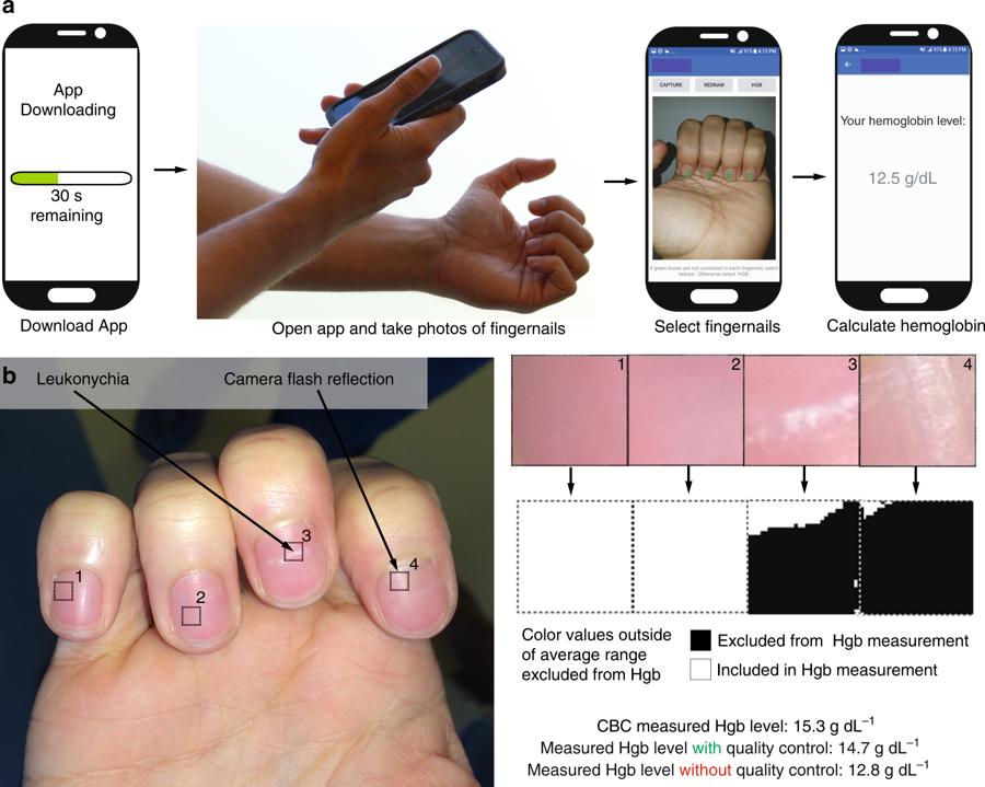 Aplicación foto anemia uñas