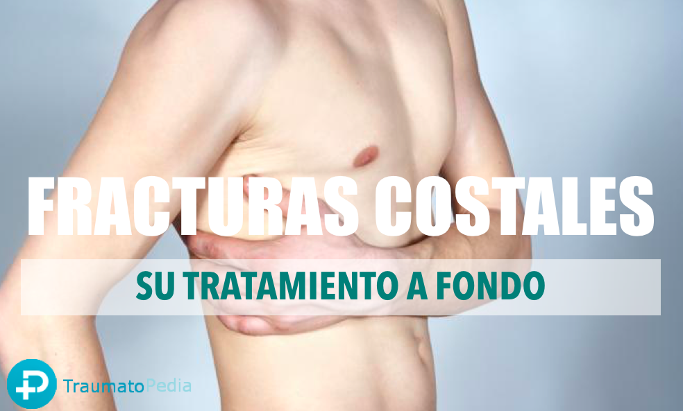 Tratamiento costillas rotas - fractura costal