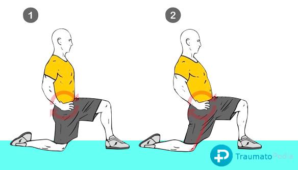 Ejercicios-estiramiento-hernia-deportista