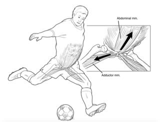 hernia-deportista-golpe-balón