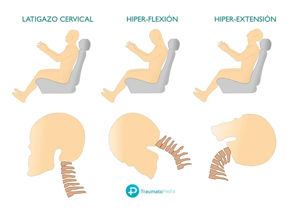 Mecanismo latigazo cervical