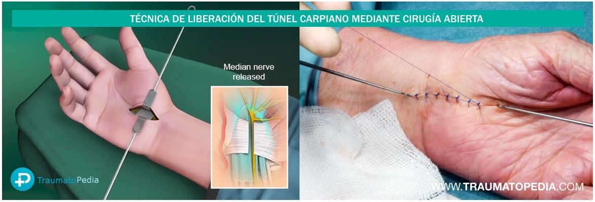 OPERACIÓN TUNEL CARPIANO