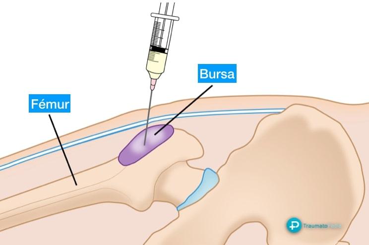 Infiltración bursitis cadera AAOS
