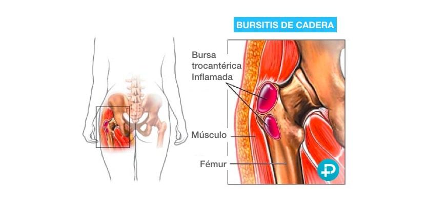 trocanteritis o bursitis