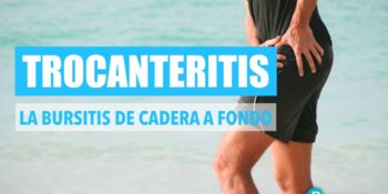Trocanteritis - Síntomas, diagnóstico y tratamiento