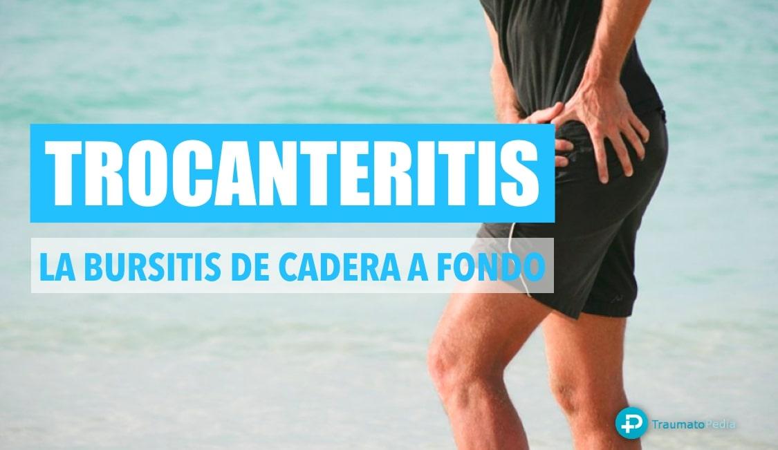 trocanteritis - bursitis de cadera