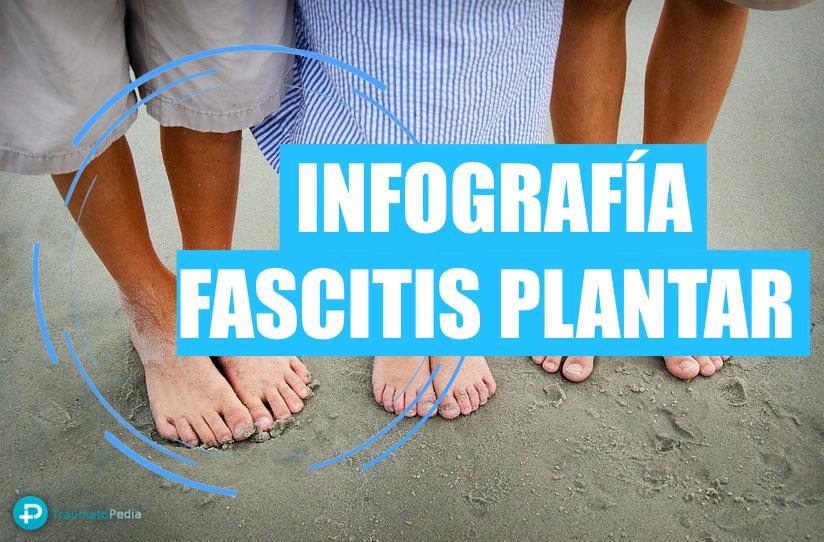 INFOGRAFÍA FASCITIS PLANTAR