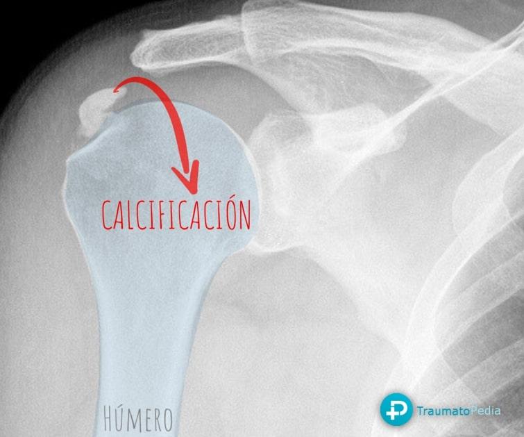 Radiografía calcificacion supraespinoso