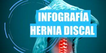 Infografía de Hernia discal