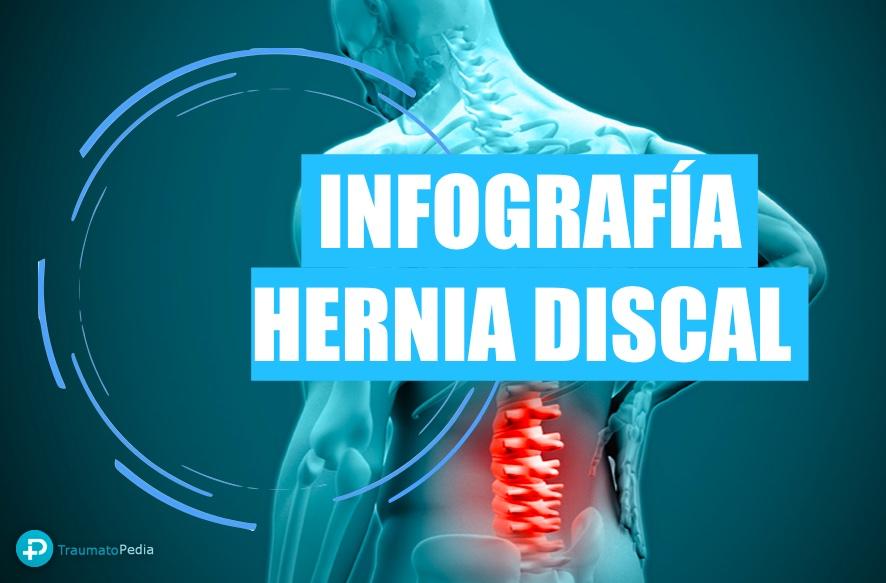 hernia discal traumatopedia