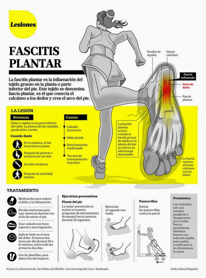 infografia-fascitis-plantar