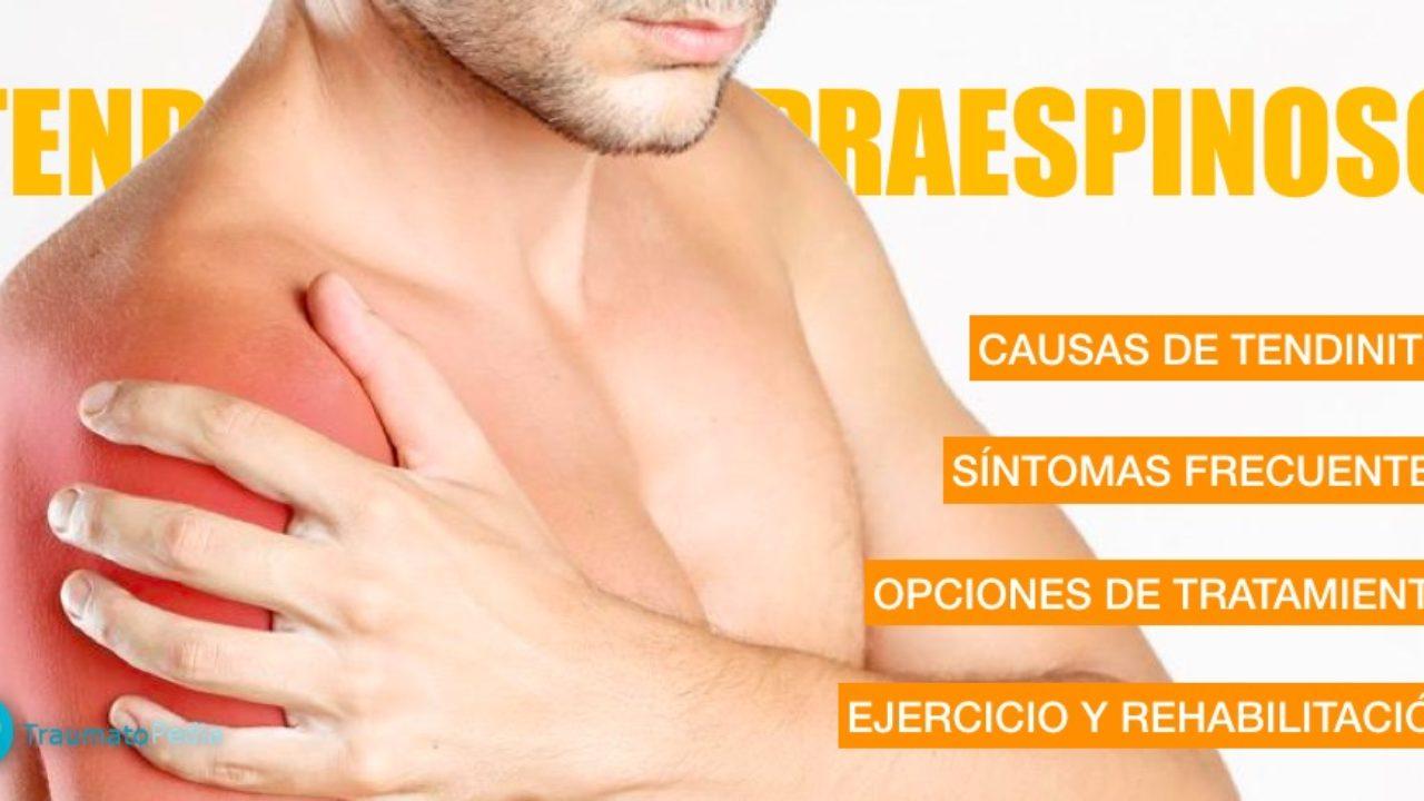 trauma y ortopedia : Tendinopatias del hombro
