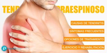 Tendinitis del supraespinoso - Hombro doloroso