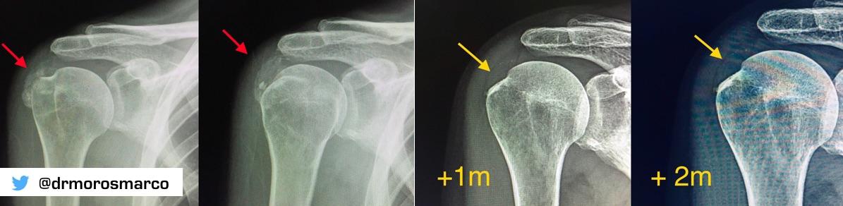 Calcificación hombro - Ondas de choque