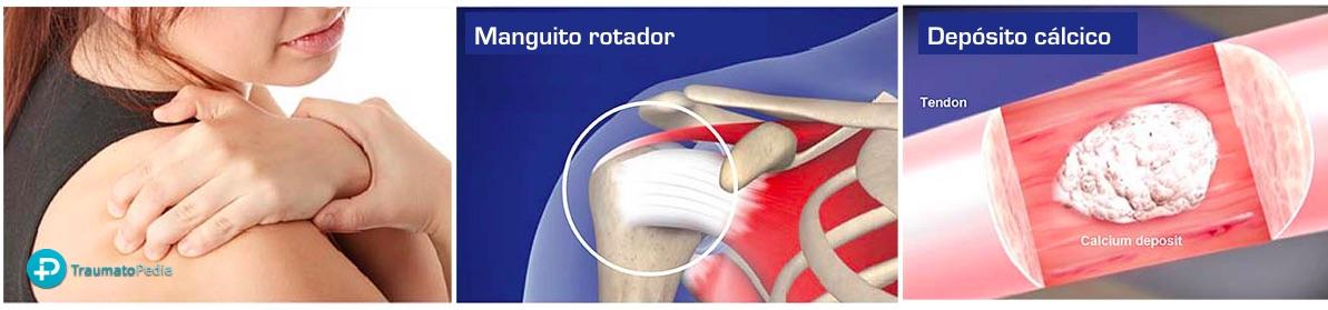Deposito de calcio tendón hombro