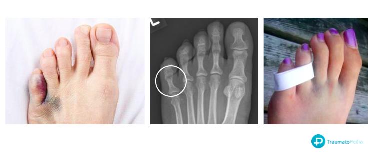 Dedo del pie roto