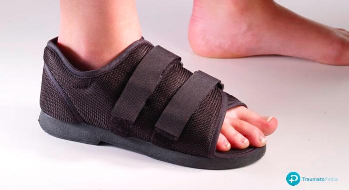 zapato suela rígida fractura dedo pie