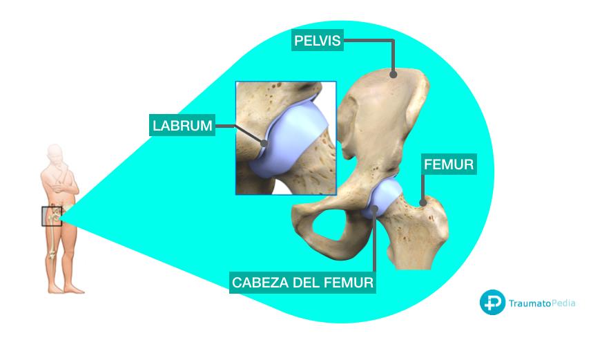 Artroscopia labrum