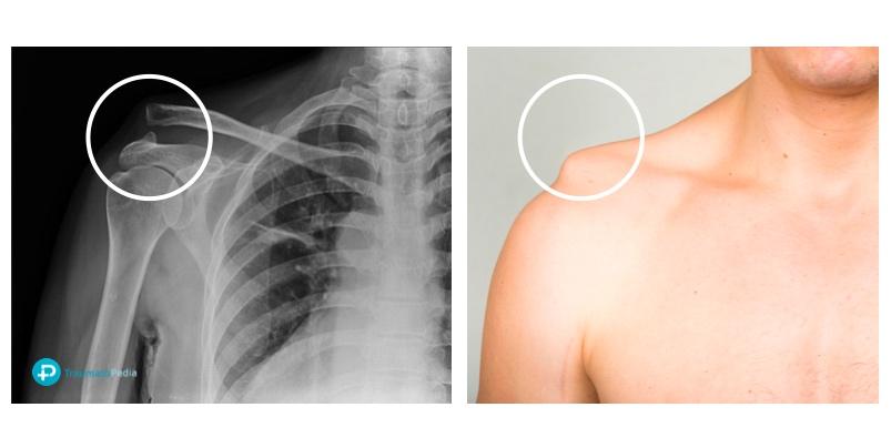Luxación acromioclavicular - Deformidad bulto hombro