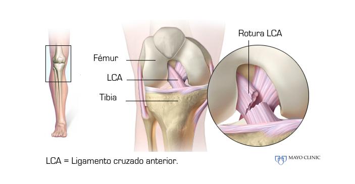 anatomía cruzados rodilla