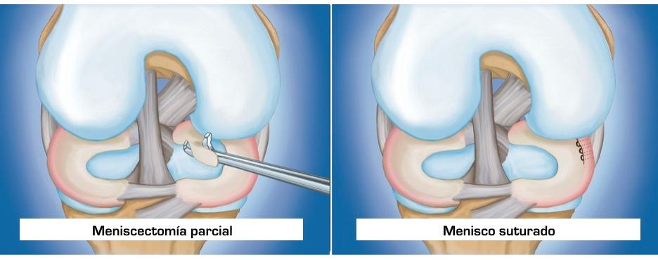 diferencia meniscectomia y sutura de menisco
