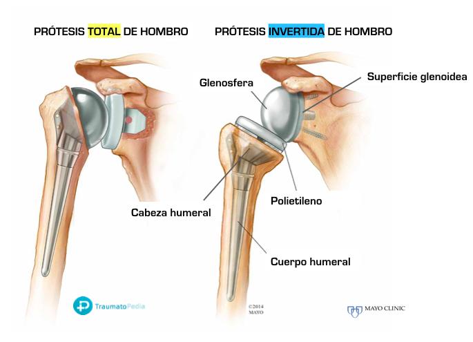diferencias tipos prótesis de hombro