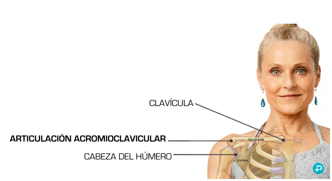 esguince luxación clavicula hombro