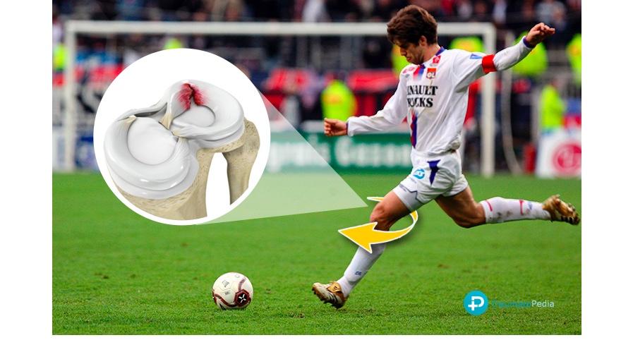 menisco roto futbol