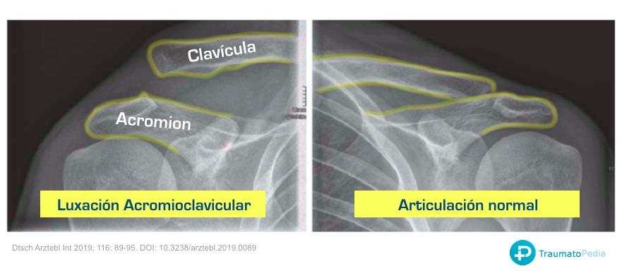 radiografía luxación esguince acromion clavicula