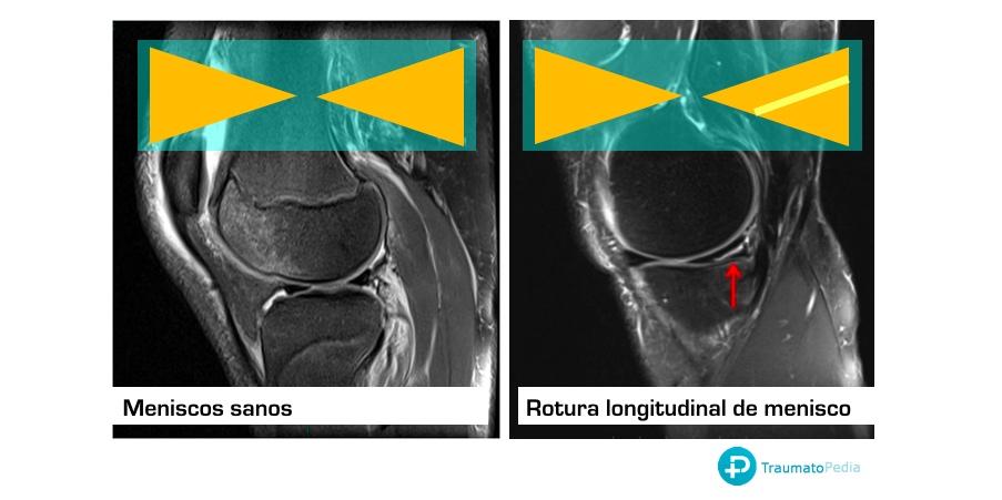 rotura menisco en RMN