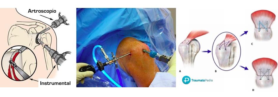 Artroscopia sutura tendón hombro