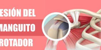 Rotura de los tendones del hombro - Manguito de los rotadores
