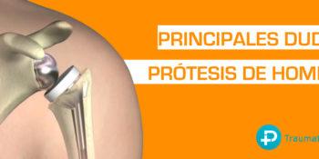 Preguntas sobre la prótesis de hombro