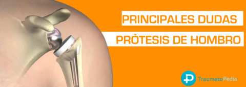 PREGUNTAS DUDAS PROTESIS HOMBR