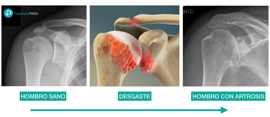 preguntas protesis hombro