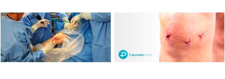 heridas artroscopia rodilla