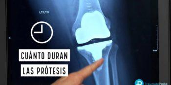 Cuanto tiempo dura una prótesis - ¿Tengo que cambiarla?