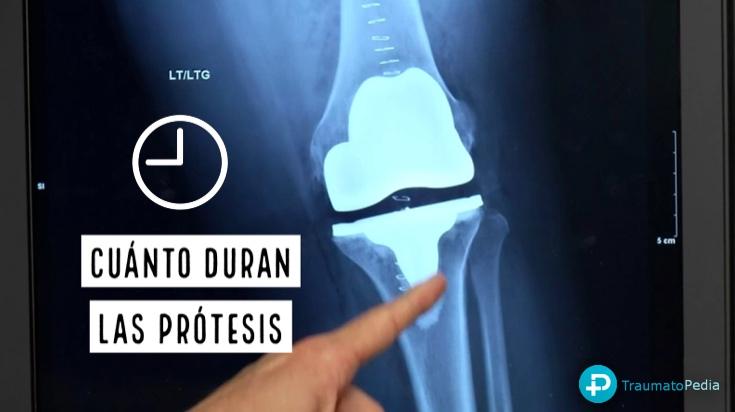 cuanto tiempo dura una prótesis