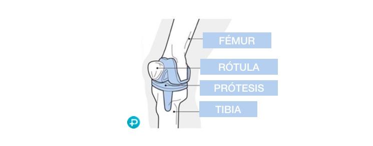cuanto_tiempo_dura_protesis_rodilla