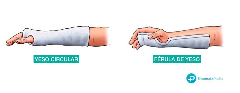 diferencia entre yeso y ferula