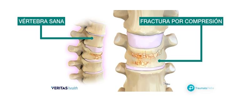 vertebra aplastada compresión osteoporosis