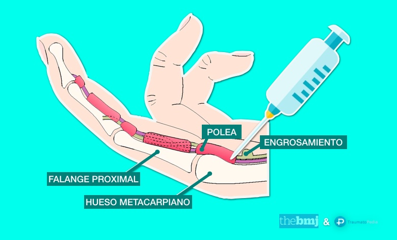 cirugía dedo en resorte