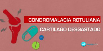▷ Condromalacia rotuliana y cartílago de rodilla desgastado