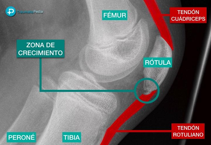 Radiografia rodilla niño Sinding-Larsen-Johansson