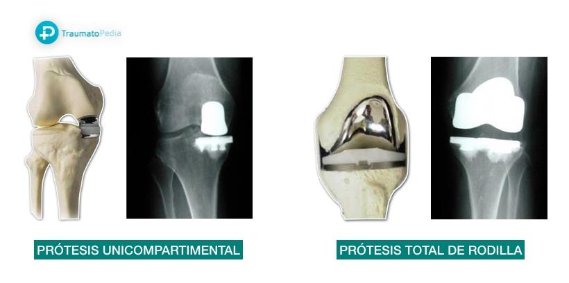 tipos de protesis de rodilla