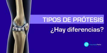 Tipos de prótesis de rodilla