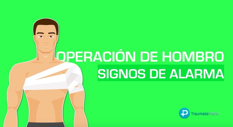 operación hombro artroscopia signos alarma