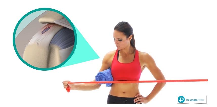 rehabilitación acromioplastia de hombro
